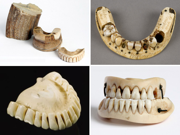 Hippo-dentures