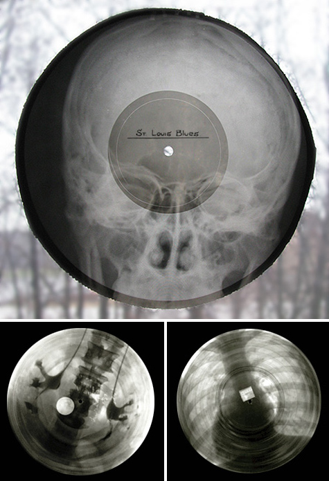 Roentgenizdat Records on X-Ray film